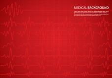 心脏监测的背景